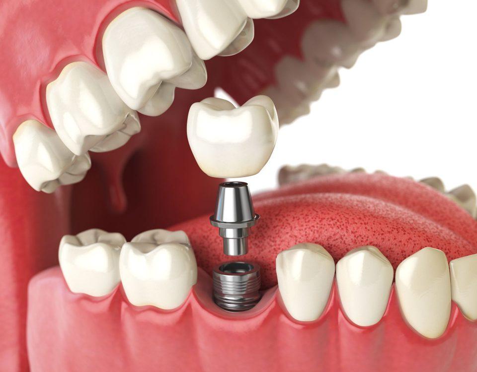 Dental Implants US vs Mexico