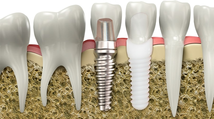 Dental Implants | Dental Alvarez