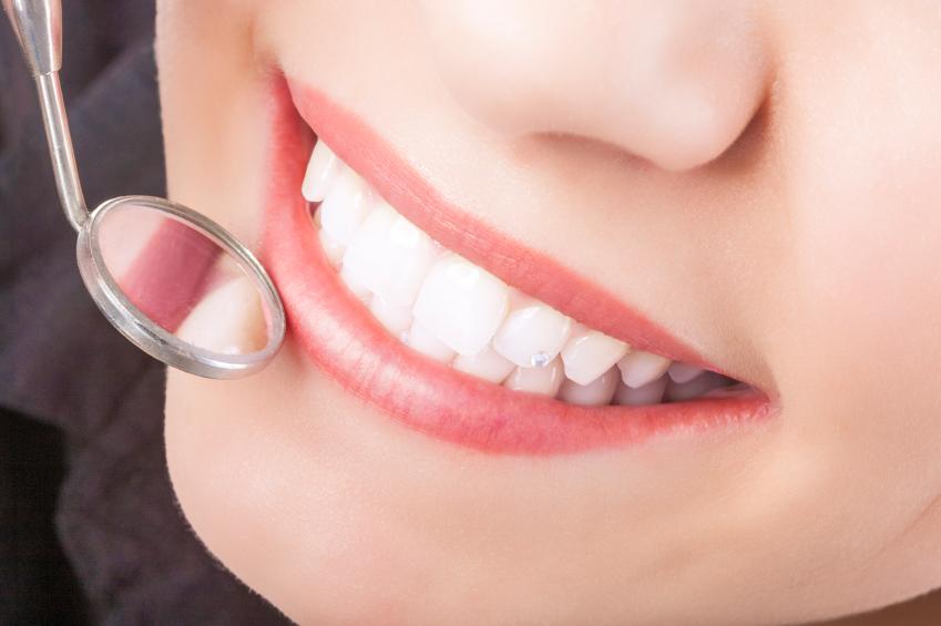 Smile Makeovers | Dental Alvarez