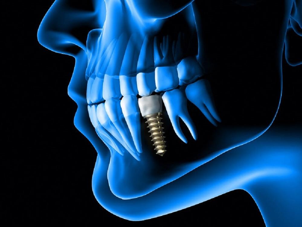 3D Dental Scanning in Tijuana