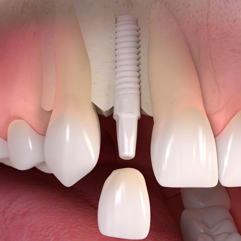 Zirconia Dental Implant in Tijuana