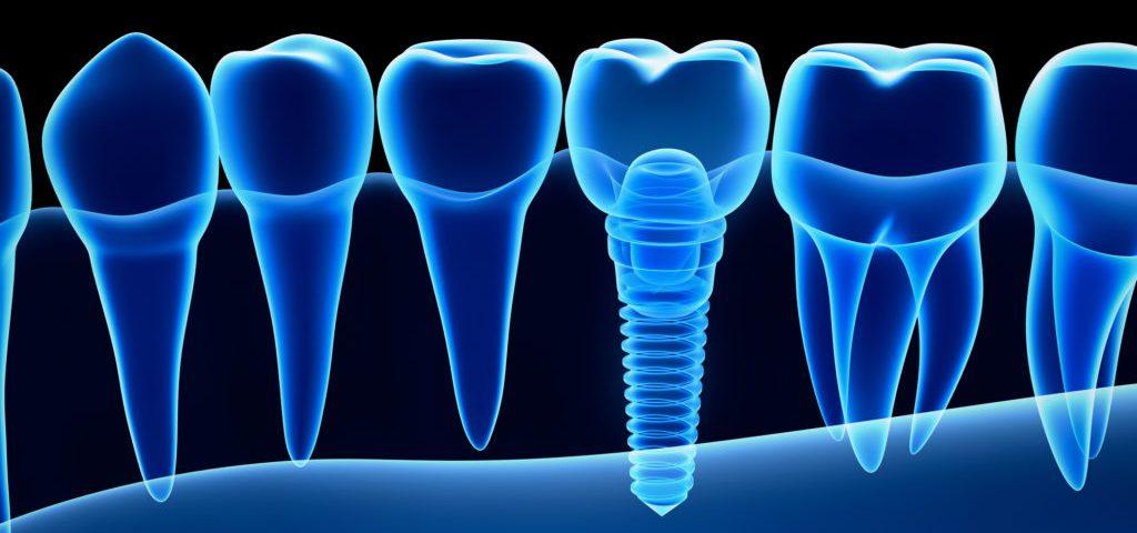 Dental Implant - Dental Alvarez