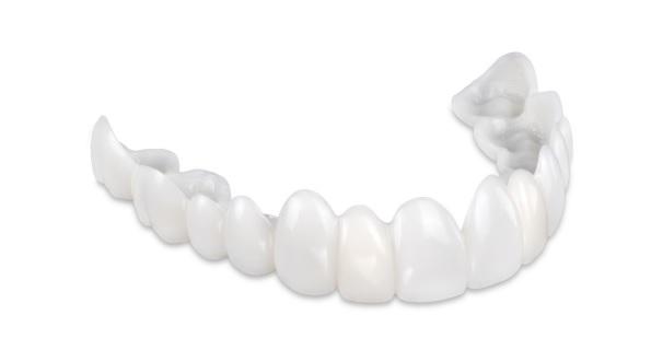 POM Temporary Dentures – Dental Alvarez
