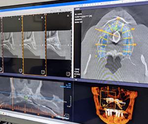 3d-dental-scan-dentists-tijuana