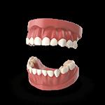 dentists-tijuana-periodontics-denture