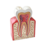 dentists-tijuana-periodontics-prevention