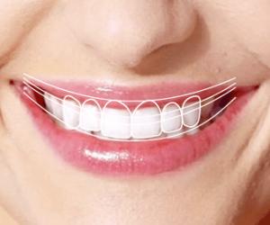 dental-technology-digital-smile-design