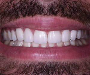 what-are-the-best-type-dental-crowns-available-in-tijuana