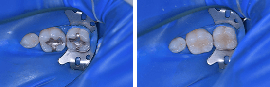 amalgam-dental-composite-procedure-before-and-after-tijuana