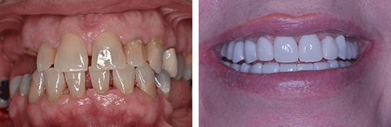before-and-after-smile-makeover-tijuana