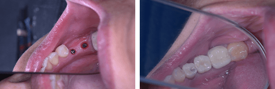 crowns-on-dental-implants-before-and-after-tijuana