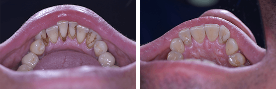dental-calculus-removal-before-and-after-tijuana