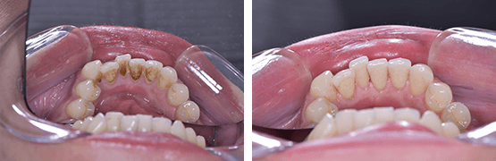 dental-cleaning-procedure-before-and-after-tijuana