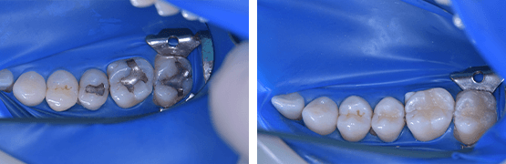 dental-composite-fillings-procedure-before-and-after-tijuana