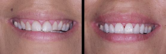 dental-crowns-veneers-before-and-after-procedure-tijuana