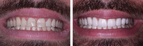 dental-crowns-veneers-smile-makeover-before-and-after-tijuana