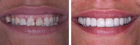 dental-smile-makeover-procedure-before-and-after-tijuana
