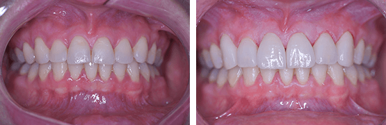 dental-veneers-procedure-before-and-after-tijuana