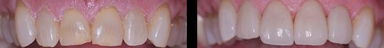 dental-veneers-procedure-in-tijuana-before-and-after
