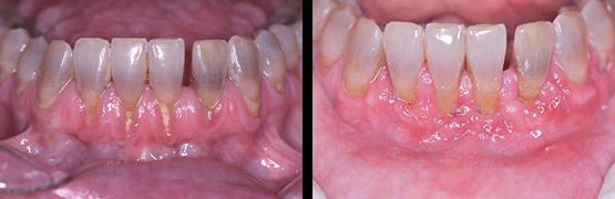 gum-graft-dental-surgery-procedure-before-and-after-tijuana