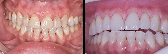 procedure-before-and-after-tijuana-dental-crowns-veneers