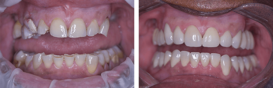 smile-makeover-dental-procedure-before-and-after-tijuana
