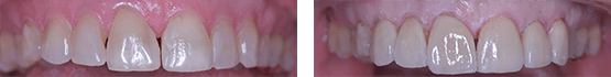 smile-makeover-in-tijuana-before-and-after