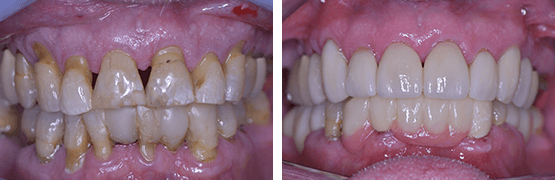 smile-makeover-procedure-before-and-after-tijuana