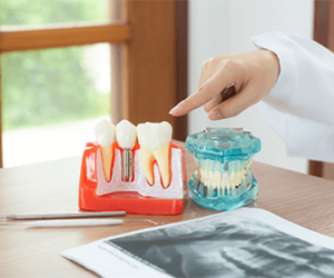 are-dental-implants-safe