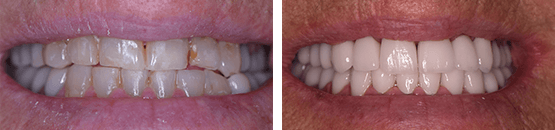 dental-crowns-and-braces-before-and-after-tijuana