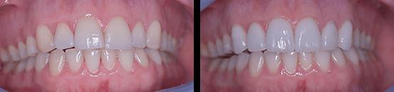 dental-crowns-veneers-in-tijuana-before-and-after