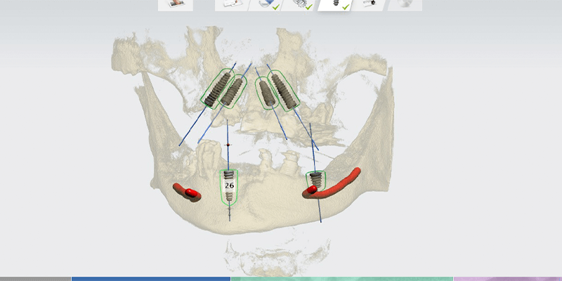 digital-implant-planning-at-our-dental-clinic