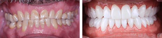 metal-free-dental-crowns-tijuana-before-and-after