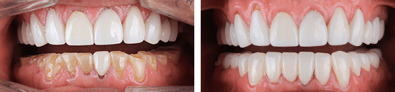 before-and-after-metal-free-zirconia-crowns-renew-your-smile-tijuana