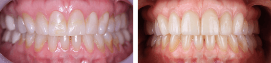 before-and-after-porcelain-dental-veneers-for-teeth-with-fissures-tijuana