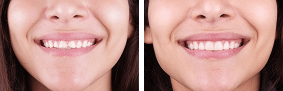 before-and-after-smile-design-injecten-resin-tijuana
