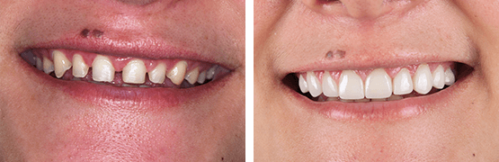before-and-after-smile-design-with-dental-veneers-tijuana