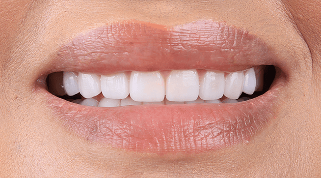 best-cosmetic-dentist-tijuana-suitable-materials-for-your-teeth