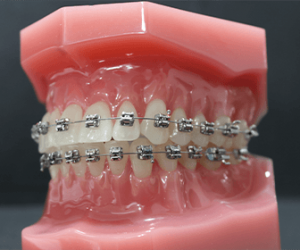 could-i-remove-those-brown-stains-on-teeth-from-braces