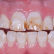 how-to-prevent-your-children-from-developing-fluorosis-in-teeth