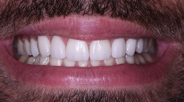 we-design-your-smile-with-precision-best-cosmetic-dentist-in-tijuana