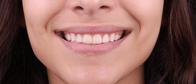 we-have-the-best-cosmetic-dentist-in-tijuana-your-smile-is-our-passion